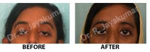 lazy eyes treatment