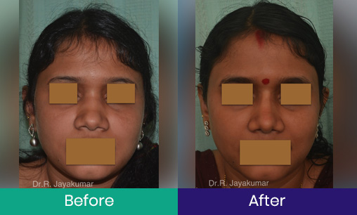 Rhinoplasty – Nose job