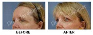 Forehead Lift Treatment Kerala