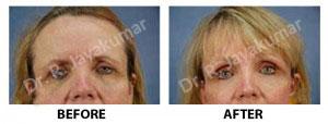 Eye brow lift Treatment Kerala