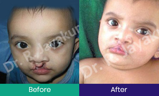 Cleft Lip – Before and After Surgery