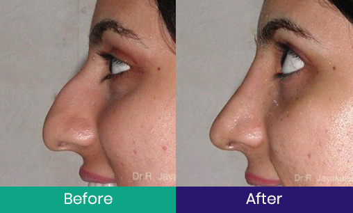Rhinoplasty – Saddle nose