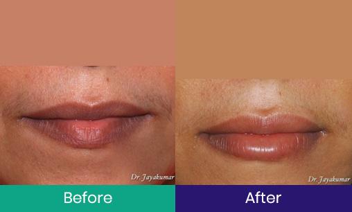 Lip Enlargement Treatment