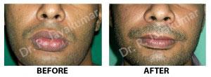 cheiloplasty in Kerala