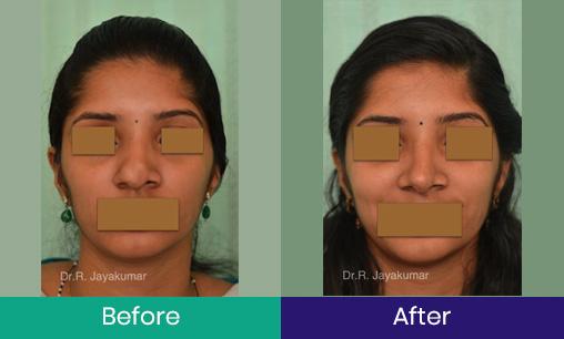 Rhinoplasty – Nose job